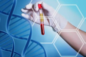 C.A.T | Ynet.co.il – Five important blood tests (Hebrew)